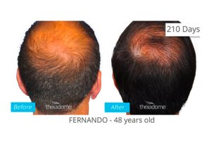 Fernando Before and After Treatment