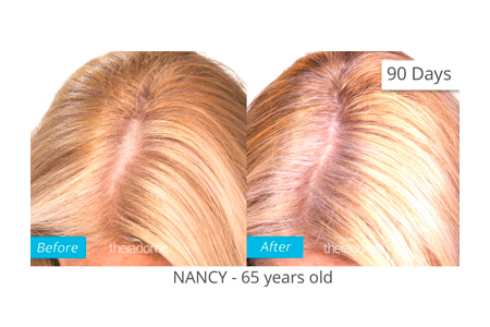 Nancy Before After Treatment